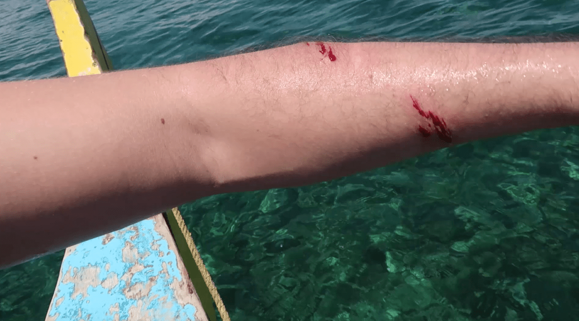 arm sliced by drone in the paradise of the philippines